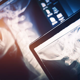 Digital imaging at Reignite Chiropractic